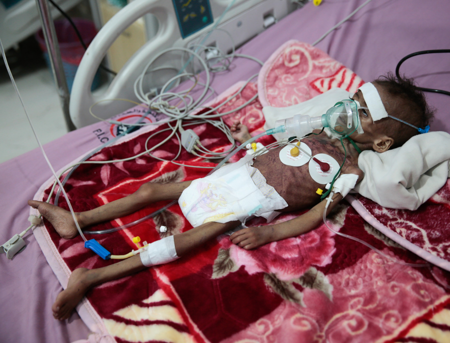 Shocking New Figures Show How Just Much the US is Fueling the Violence in Yemen